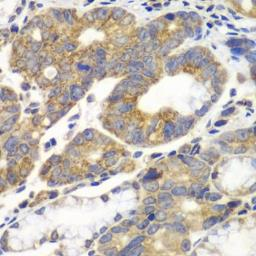 Anti-Fructose 6 Phosphate Kinase antibody used in IHC (Paraffin sections) (IHC-P). GTX33405