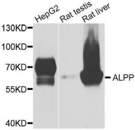 Anti-Placental Alkaline Phosphatase antibody used in Western Blot (WB). GTX33413