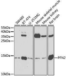 Anti-Profilin 2 antibody used in Western Blot (WB). GTX33429