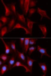 Anti-Proteasome beta 4 antibody used in Immunocytochemistry/ Immunofluorescence (ICC/IF). GTX33431