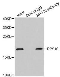 Anti-RPS10 antibody used in Immunoprecipitation (IP). GTX33475