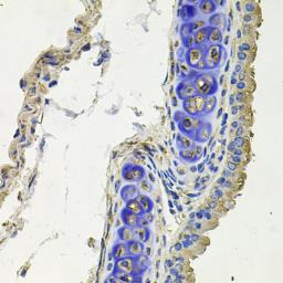 Anti-SKP1 antibody used in IHC (Paraffin sections) (IHC-P). GTX33502
