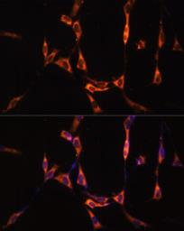 Anti-SND1 antibody used in Immunocytochemistry/ Immunofluorescence (ICC/IF). GTX33508