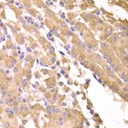 Anti-Suppressor of Fused antibody used in IHC (Paraffin sections) (IHC-P). GTX33530