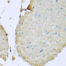 Anti-MPYS antibody used in IHC (Paraffin sections) (IHC-P). GTX33549