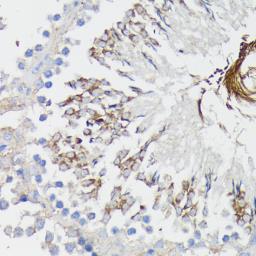 Anti-TNF Receptor I antibody used in IHC (Paraffin sections) (IHC-P). GTX33550