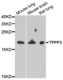 Anti-TPPP3 antibody used in Western Blot (WB). GTX33554