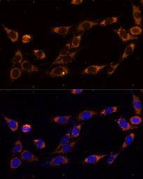 Anti-TRAP1 antibody used in Immunocytochemistry/ Immunofluorescence (ICC/IF). GTX33558