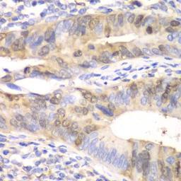 Anti-UBE2C antibody used in IHC (Paraffin sections) (IHC-P). GTX33567