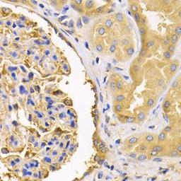Anti-VDP / p115 antibody used in IHC (Paraffin sections) (IHC-P). GTX33578