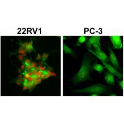 Anti-Androgen Receptor (ARv7 Splice Variant) antibody [RM7] used in Immunocytochemistry/ Immunofluorescence (ICC/IF). GTX33604