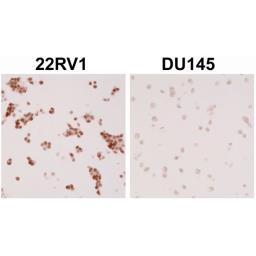 Anti-Androgen Receptor (ARv7 Splice Variant) antibody [RM7] used in IHC (Paraffin sections) (IHC-P). GTX33604