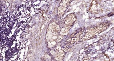 Anti-CD28 antibody used in IHC (Paraffin sections) (IHC-P). GTX33959