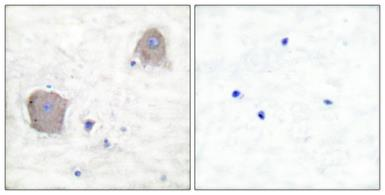 Anti-mGluR4 antibody used in IHC (Paraffin sections) (IHC-P). GTX33978