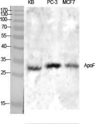 Anti-Apolipoprotein F antibody used in Western Blot (WB). GTX34008