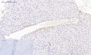 Anti-JAK3 antibody used in IHC (Paraffin sections) (IHC-P). GTX34020