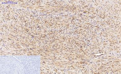 Anti-LC3A antibody [5G10] used in IHC (Paraffin sections) (IHC-P). GTX34067