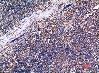 Anti-Cyclin B1 antibody [5C1] used in IHC (Paraffin sections) (IHC-P). GTX34188