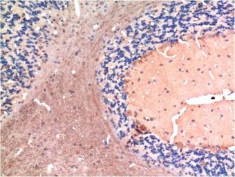 Anti-TGF beta 1 antibody [5D2] used in IHC (Paraffin sections) (IHC-P). GTX34272