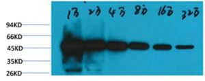 Anti-beta Tubulin I antibody [5G3] (HRP) used in Western Blot (WB). GTX34285
