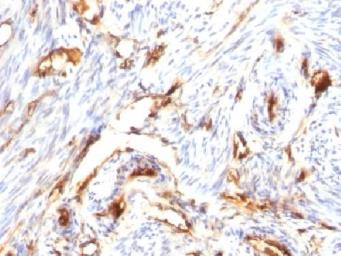 Anti-beta 2 Microglobulin antibody [B2M/1118] used in IHC (Paraffin sections) (IHC-P). GTX34435