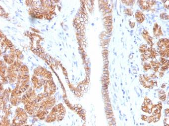Anti-beta Catenin antibody [CTNNB1/1508] used in IHC (Paraffin sections) (IHC-P). GTX34443