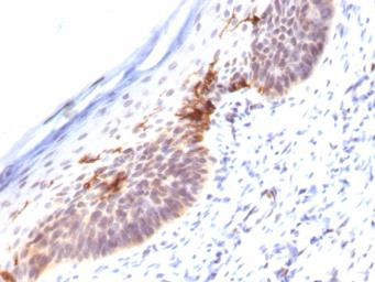 Anti-CD1a antibody [SPM120] used in IHC (Paraffin sections) (IHC-P). GTX34470