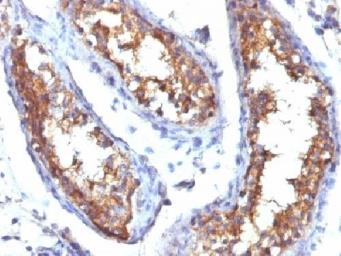 Anti-CD99 antibody [HO36-1.1] used in IHC (Paraffin sections) (IHC-P). GTX34576