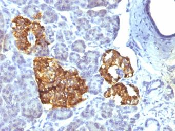 Anti-Chromogranin A antibody [CHGA/777] used in IHC (Paraffin sections) (IHC-P). GTX34598