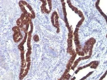 Anti-Cytokeratin 7 antibody [K72.7] used in IHC (Paraffin sections) (IHC-P). GTX34657