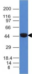 Anti-Cytokeratin 8 antibody [K8/383] used in Western Blot (WB). GTX34666