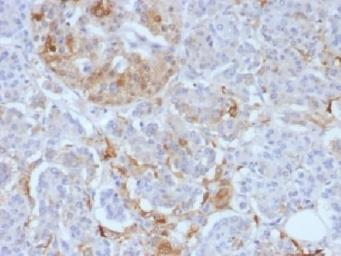 Anti-Ferritin Light Chain antibody [FTL/1388] used in IHC (Paraffin sections) (IHC-P). GTX34723