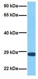 Anti-PLUNC antibody, Internal used in Western Blot (WB). GTX47015