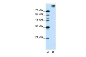 Anti-SF3B1 antibody, N-term used in Western Blot (WB). GTX47327