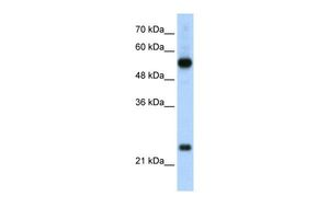 Anti-RPL13 antibody, C-term used in Western Blot (WB). GTX47429