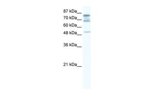 Anti-DDX46 antibody, C-term used in Western Blot (WB). GTX47439