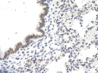 Anti-VDAC3 antibody, N-term used in IHC (Paraffin sections) (IHC-P). GTX47681