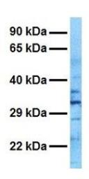Anti-RALY antibody, N-term used in Western Blot (WB). GTX47714