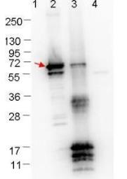 Anti-Borrelia burgdorferi Erpn/Ospe antibody used in Western Blot (WB). GTX48807