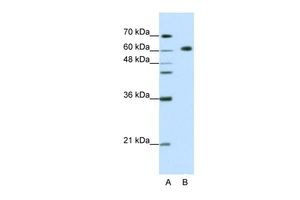 Anti-GMEB2 antibody, C-term used in Western Blot (WB). GTX49002