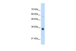Anti-HOXB4 antibody, N-term used in Western Blot (WB). GTX49003