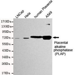 Anti-Placental Alkaline Phosphatase antibody [8F10-2C10-C9] used in Western Blot (WB). GTX49147