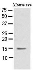Anti-CRABP1 antibody [AT1A1] used in Western Blot (WB). GTX50013