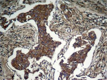 Anti-AKT (phospho Ser473) antibody used in IHC (Paraffin sections) (IHC-P). GTX50128