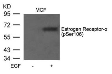 Anti-Estrogen Receptor alpha (phospho Ser106) antibody used in Western Blot (WB). GTX50138
