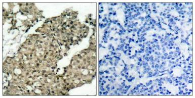 Anti-G3BP1 (phospho Ser232) antibody used in IHC (Paraffin sections) (IHC-P). GTX50149