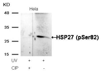 Anti-HSP27 (phospho Ser82) antibody used in Western Blot (WB). GTX50277