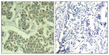 Anti-eIF2 alpha (phospho Ser49) antibody used in IHC (Paraffin sections) (IHC-P). GTX50342