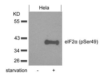 Anti-eIF2 alpha (phospho Ser49) antibody used in Western Blot (WB). GTX50342