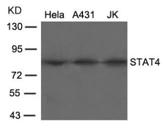 Anti-STAT4 antibody used in Western Blot (WB). GTX50403